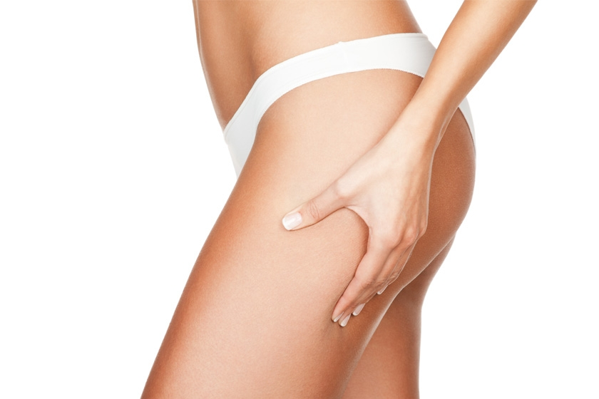 All you need to know about stretch marks