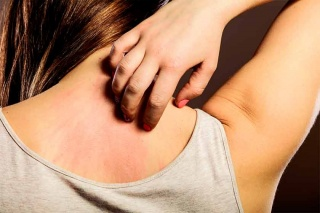Treatments for Atopic Dermatitis