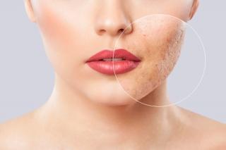 Tratamentos para Acne e Poros